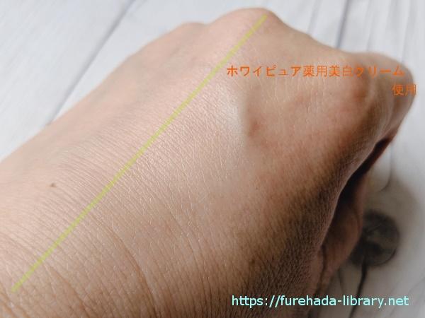 ホワイピュア薬用美白クリーム使用後の肌