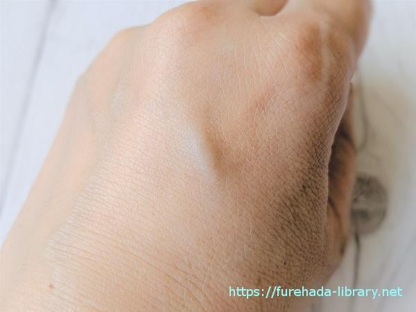 フレキュレル使用後の肌