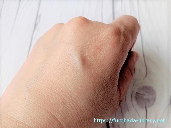 プラチナVCローション使用後の肌